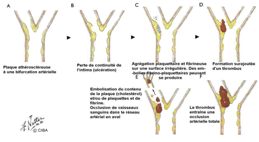 mourir syndrome occlusif alzheimer